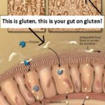 Mysteries of Celiac Disease and provides an illuminating example of the way such a triad—an environmental trigger, susceptibility genes and a gut abnormality—may play a role in many autoimmune disorders.