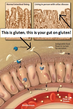 Mysteries of Celiac Disease and provides an illuminating example of the way such a triad—an environmentaltrigger, susceptibility genes and a gut abnormality—may play a role in many autoimmunedisorders.